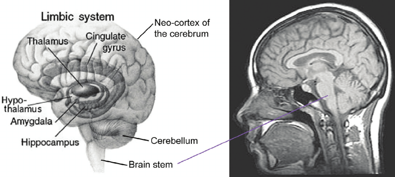 brain diagram inside 2006 f150 window wiring the position of head original image left from wikimedia
