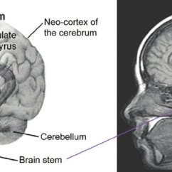 Brain Diagram Inside 2002 Ford Escape Ignition Wiring The Position Of Head Original Image Left From Wikimedia
