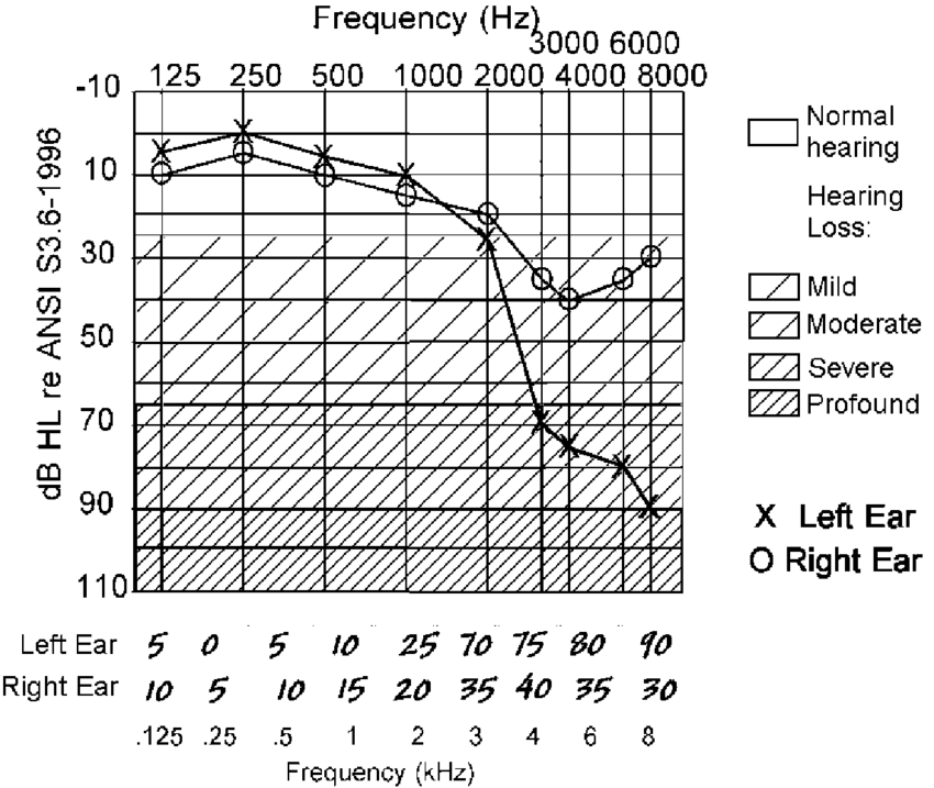 14. Audiogram asymmetric depicting high-frequency hearing
