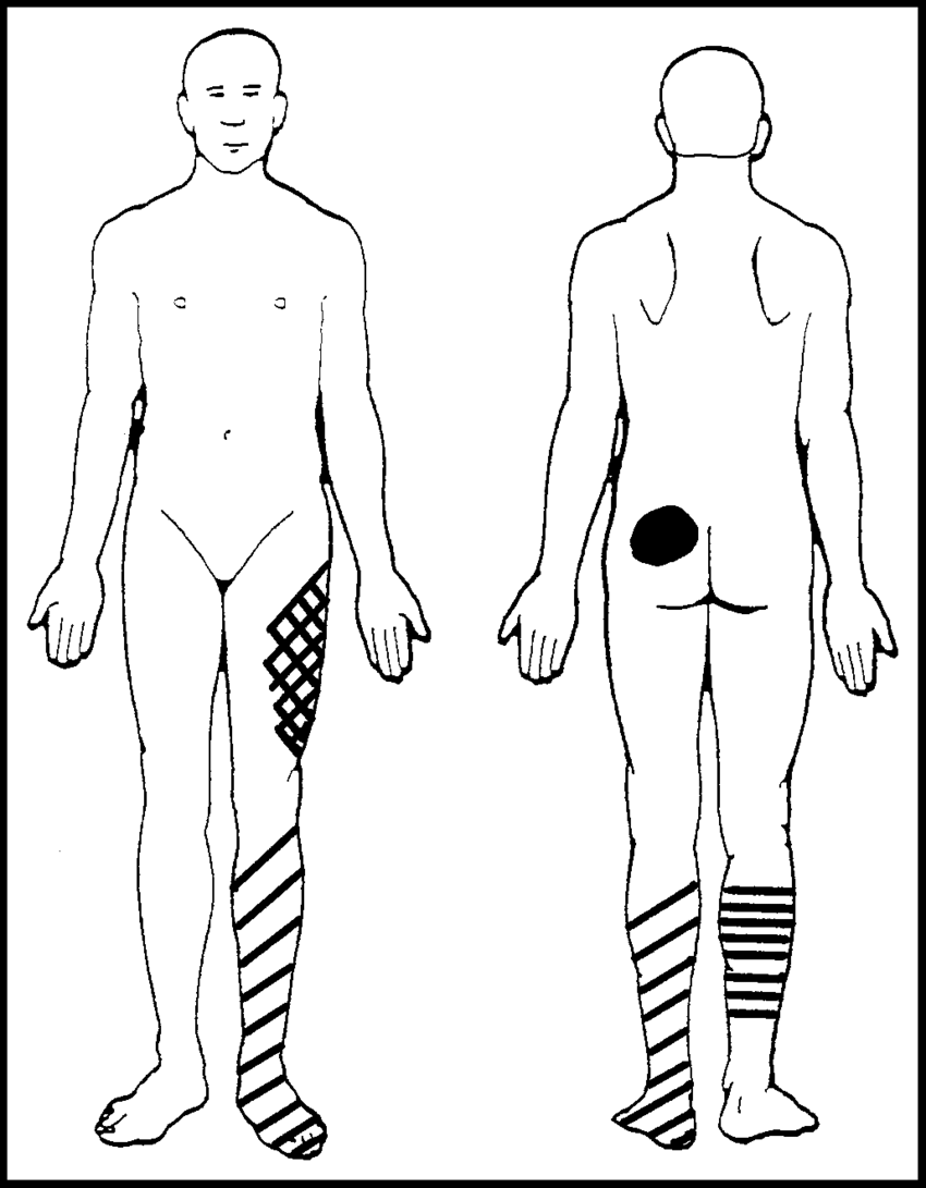 medium resolution of diagram of locations of the patient s symptoms the dark circle represents pain the crosshatching represents temperature changes of hot and cold