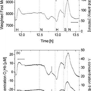 (PDF) Monitoring cerebral perfusion using near-infrared