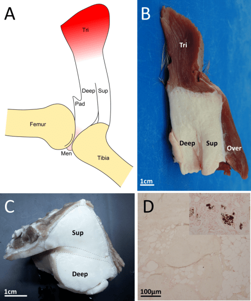 small resolution of  a schematic drawing of the emu patellar tendon shown reflected from the femur distally the tendon splits into superficial sup and deep deep portions