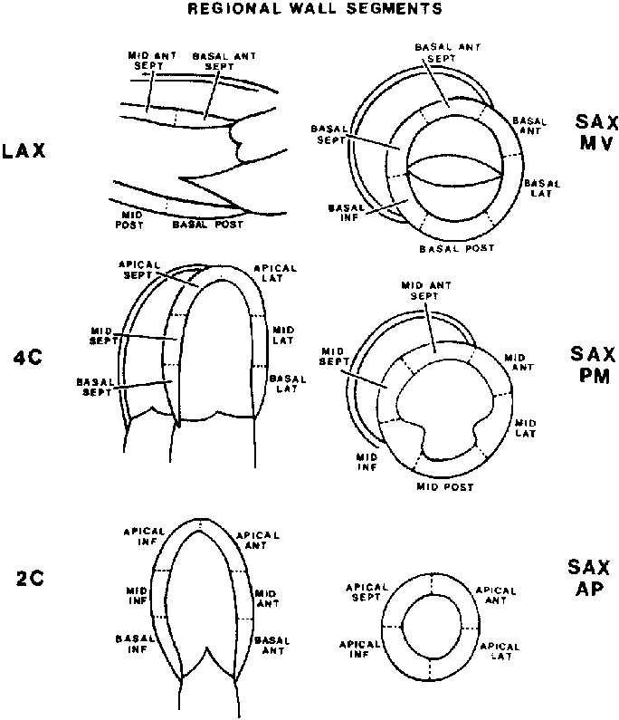 Diagram indicating how the left ventricle can be divided
