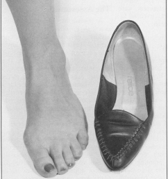 a a 16 year old girl with a painful adolescent bunion note early hammer [ 850 x 1009 Pixel ]