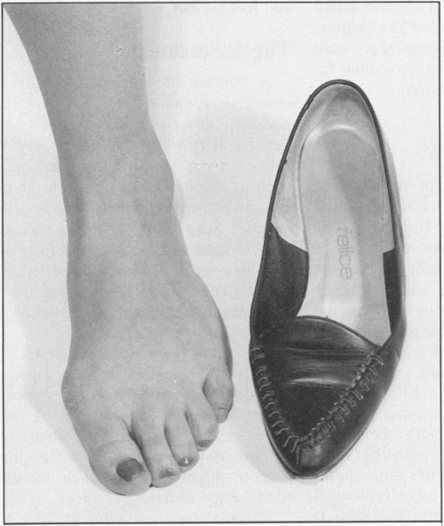 small resolution of a a 16 year old girl with a painful adolescent bunion note early hammer