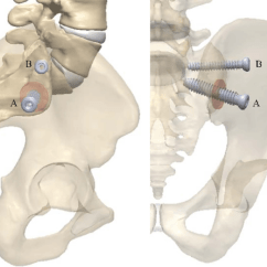 Sacroiliac Joint Diagram Coachman Pastiche Wiring Simmetry Fusion System Implant With Decorticated Regions Red Discs Sagittal