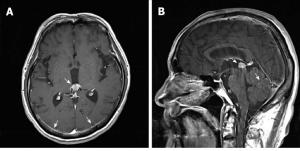 Brain magic resonance imaging findings A: Pineal gland