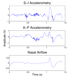 2 an example of dual axis accelerometry and nasal airflow signals after downsampling  [ 850 x 972 Pixel ]