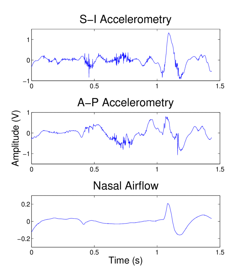 hight resolution of 2 an example of dual axis accelerometry and nasal airflow signals after downsampling