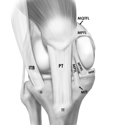 illustration depicting the insertions and orientations of the medial patellar ligaments mpfl mptl  [ 850 x 1049 Pixel ]