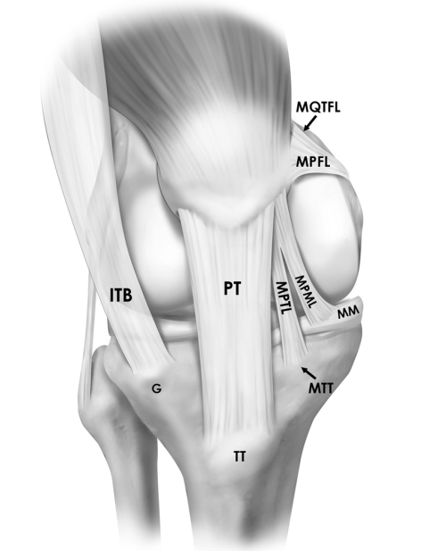 small resolution of illustration depicting the insertions and orientations of the medial patellar ligaments mpfl mptl