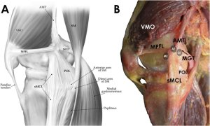 A and 1B The posteromedial corner AMT 5 adductor magnus tendon, VMO 5 | Download Scientific