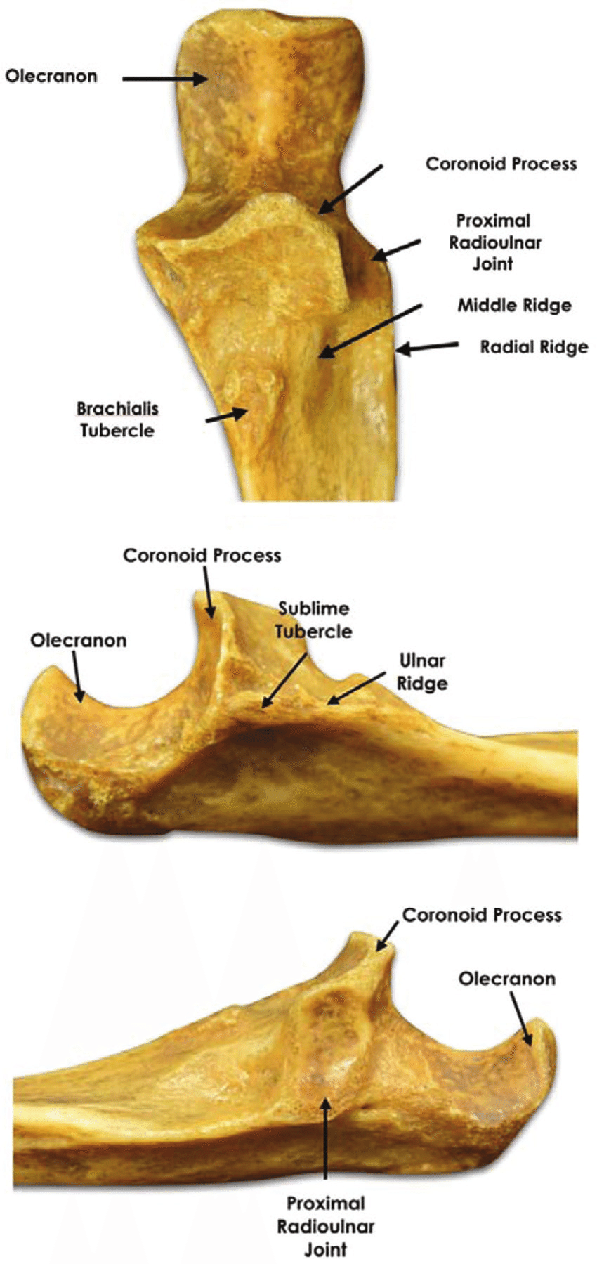 hight resolution of relevant bony landmarks of the proximal ulna