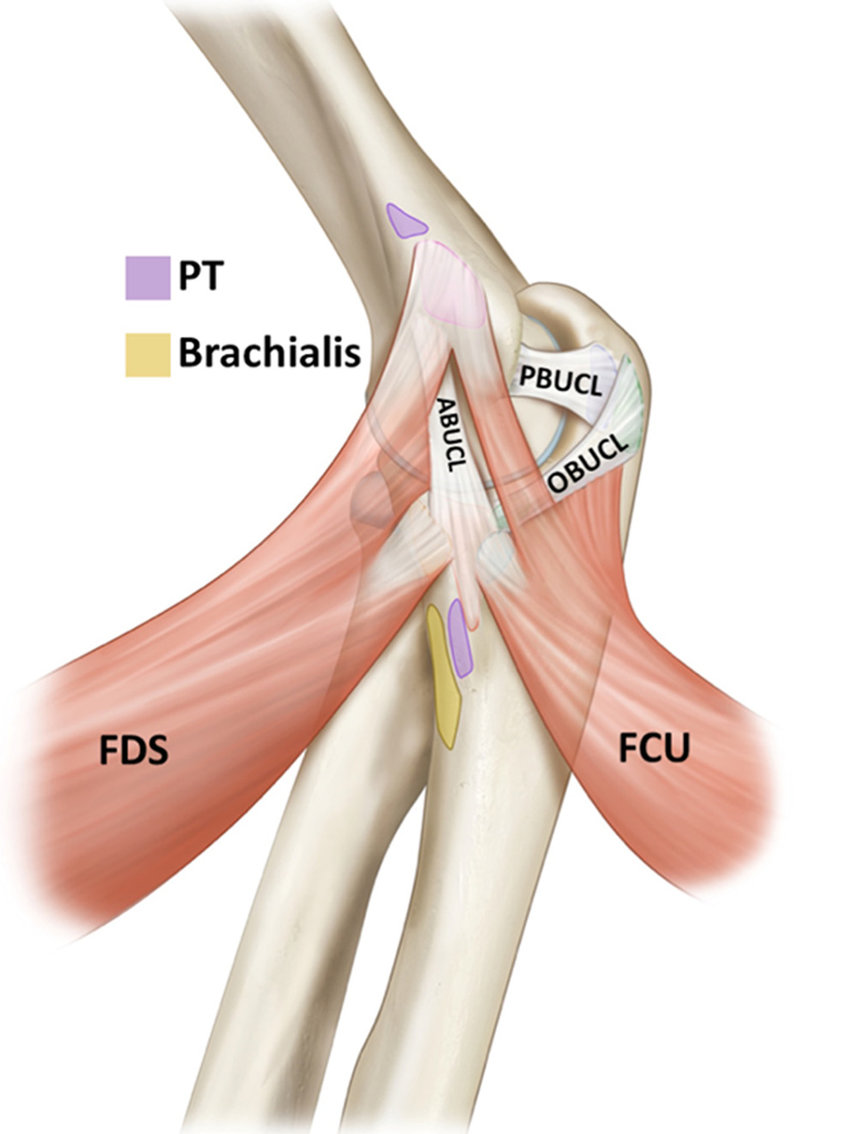 hight resolution of medial view of an elbow demonstrating the 3 bundles of the ulnar collateral ligament