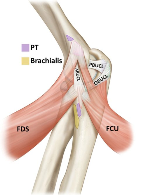 small resolution of medial view of an elbow demonstrating the 3 bundles of the ulnar collateral ligament