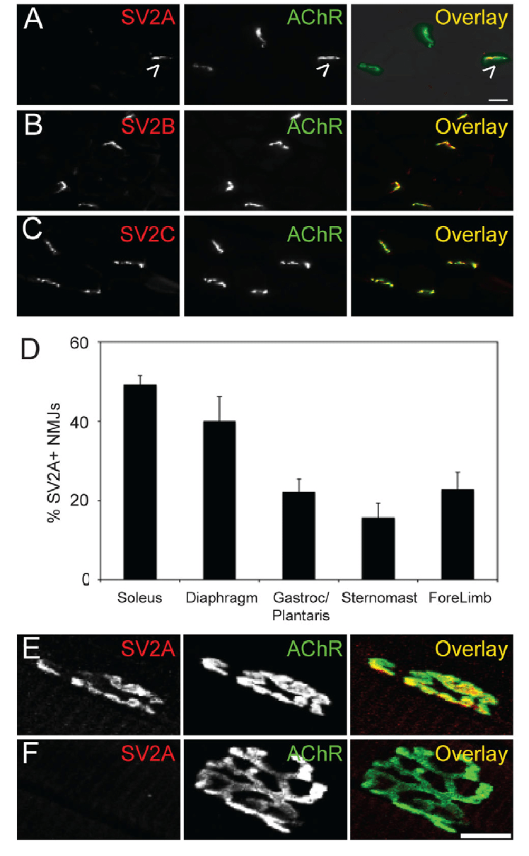 hight resolution of sv2a is localized to a subset of motor nerve terminals a c cross sections of medial gastrocnemius stained with antibodies specific for sv2a