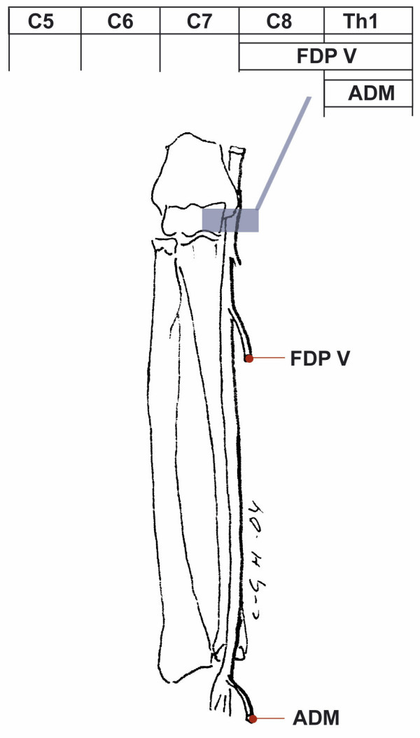 Pattern of muscle weakness with ulnar nerve involvement