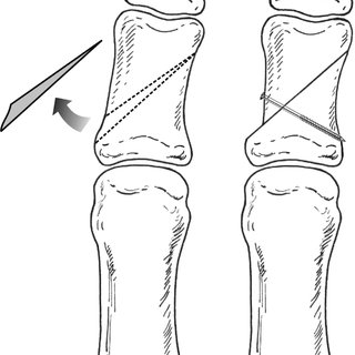 Postoperative radiograph of the modified Akin osteotomy