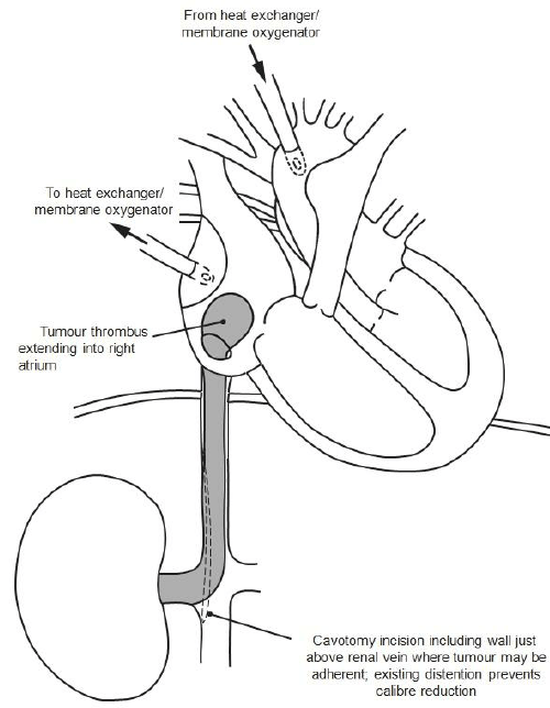 Diagram showing tumour thrombus extension, cavotomy and