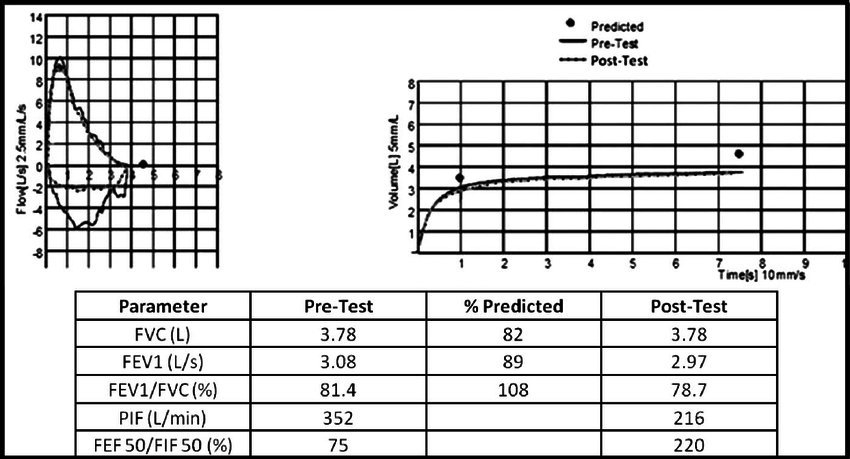Spirometry results in a patient with intermittent dyspnea