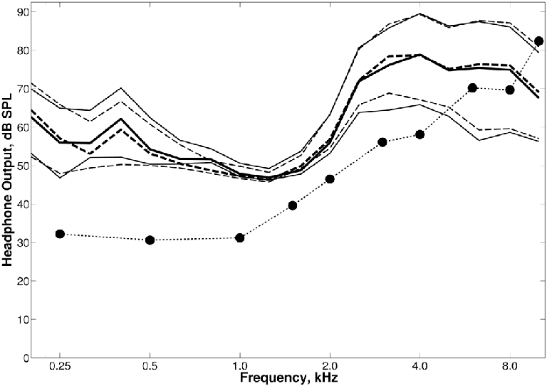 Average pure-tone thresholds of the hearing-impaired