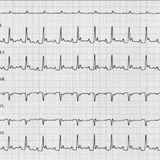 Six-lead ECG tracings obtained from the cat in Figure 1
