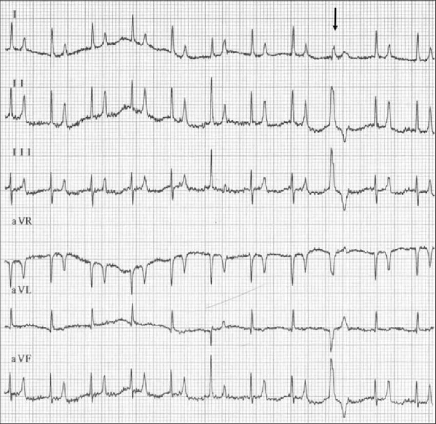 nitial 6-lead ECG recording obtained from a cat that was ...