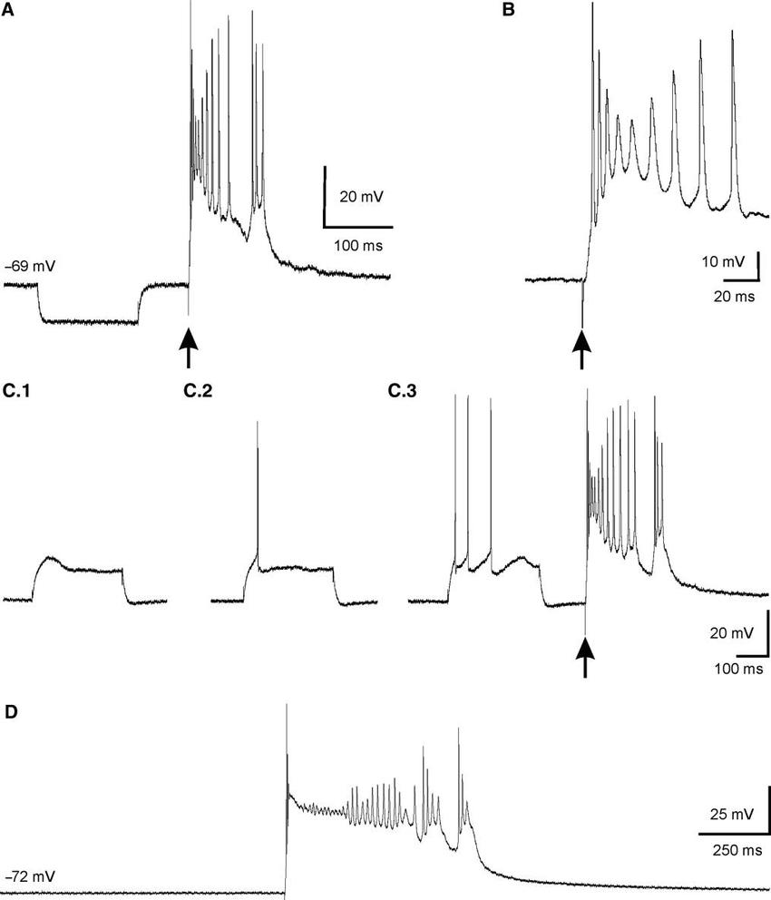 Epileptiform-like response to supra-threshold intra