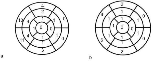 Correlation between enhanced myocardial segments and wall
