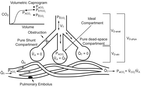 The 3 compartment lung model described by Riley 36,37