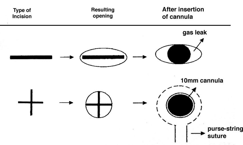 Comparison between the standard incision and cross