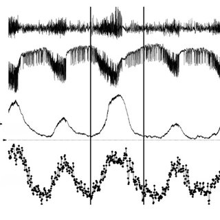 Cartoon of glucose metabolism via pyruvate in neurons