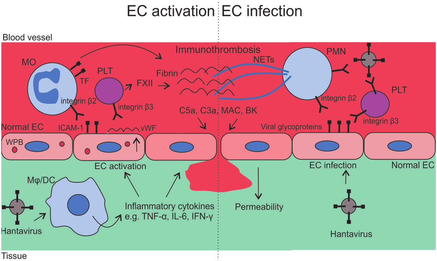 Mechanisms of vasculopathy in hantavirus infections. The ...
