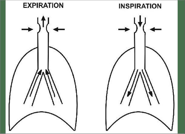 c: Schematic diagram explaining the mechanism of fixed