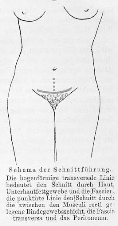 Drawing from Pfannenstiel's original article (1900