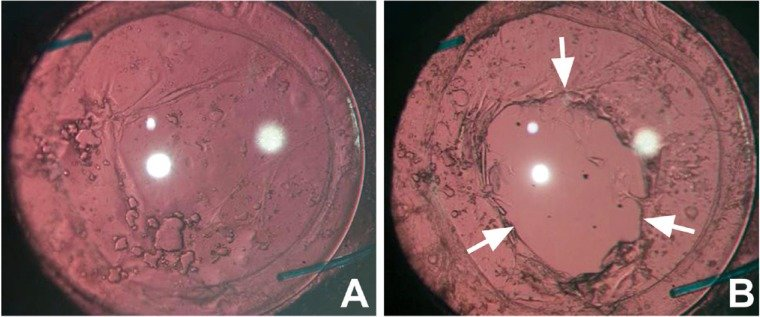 Image result for posterior capsular opacification