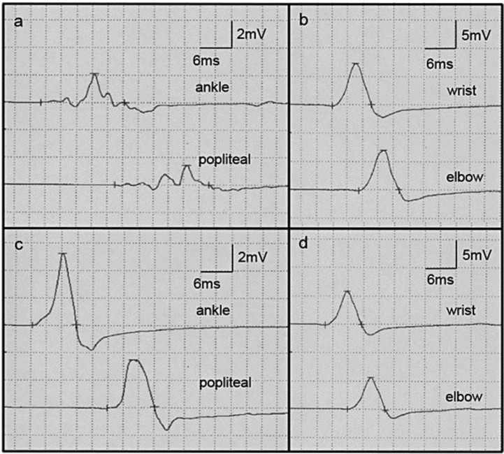 Motor nerve conduction study of the tibial (a, c) and