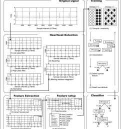 summary of proposed system for the classification of heartbeats ecg ecg electrocardiography  [ 840 x 961 Pixel ]