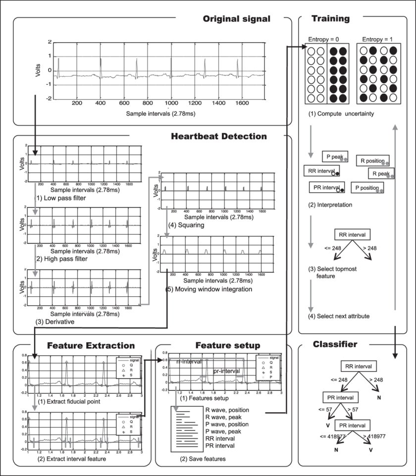 medium resolution of summary of proposed system for the classification of heartbeats ecg ecg electrocardiography