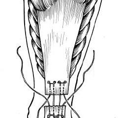 (PDF) Acute Achilles Tendon Rupture A Randomized