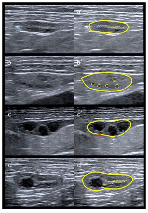 small resolution of appearance of the ovaries the outline of the ovary is highlighted by a solid line