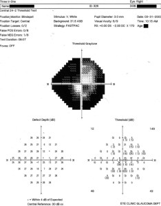 Humphreys visual field chart showing the damage in right eye of patient bsr also rh researchgate