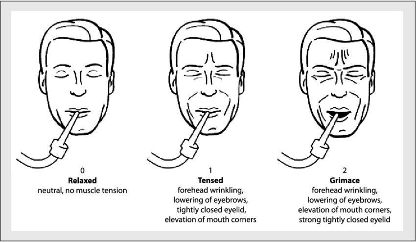 Facial expressions in Critical Care Pain Observation Tool