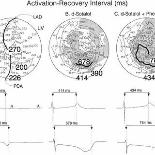 (PDF) Polymorphic ventricular tachycardias induced by