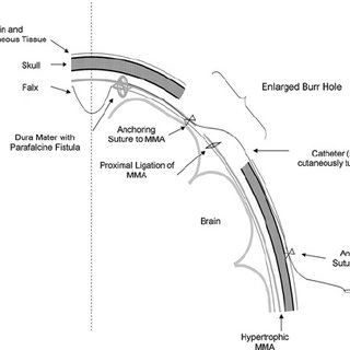 Schematic overview of the surgical access to the middle