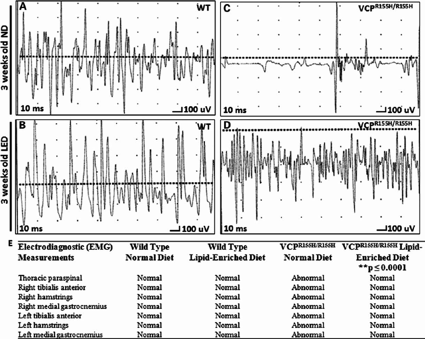 EMG analysis of quadriceps in VCP R155H/R155H and WT