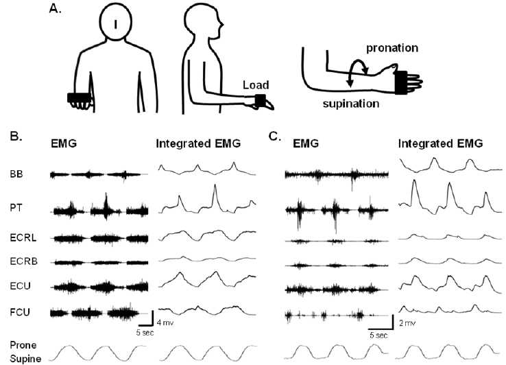 An electromyographic (EMG) study of repetitive movements
