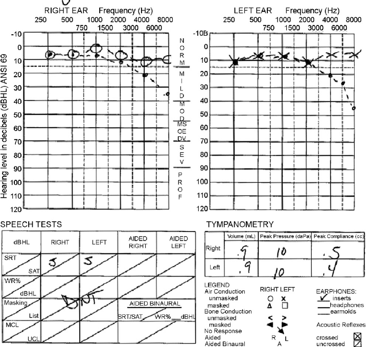 Audiogram performed 5 weeks after initiation of cisplatin