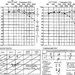 Audiogram performed after initiation of cisplatin therapy