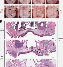 tooth extraction wound healing in wt mice and the development of onj like lesions in [ 850 x 1224 Pixel ]